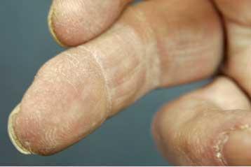 Τεχνική αναδόμησης δαχτύλου
